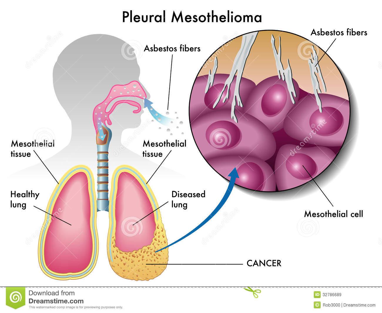 Mesotelioma Pleurico e asbesto