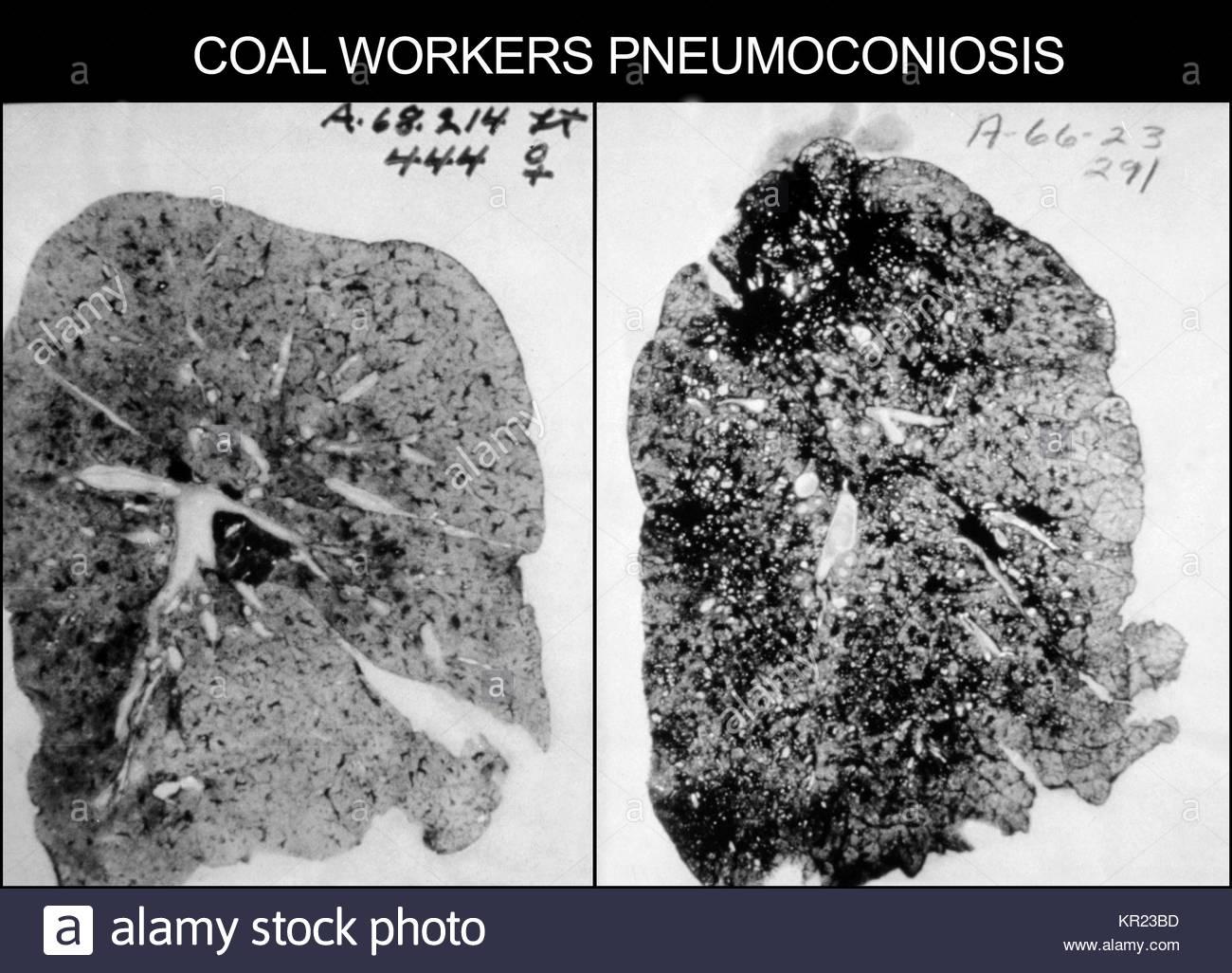 pneumoconiosi malattie polmonari