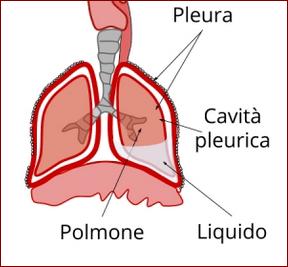 Pleurite infiammazione della pleura