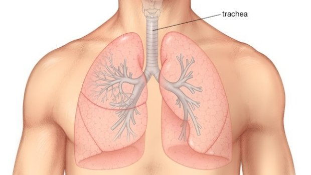 Tumore alla trachea